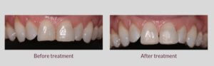 Photographs of the teeth before and after treatment